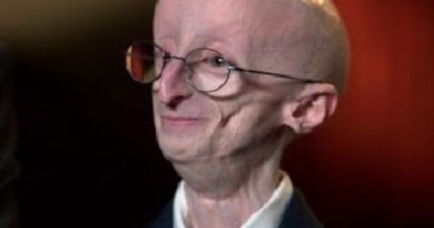 How did Sam Berns die cause of death age of death